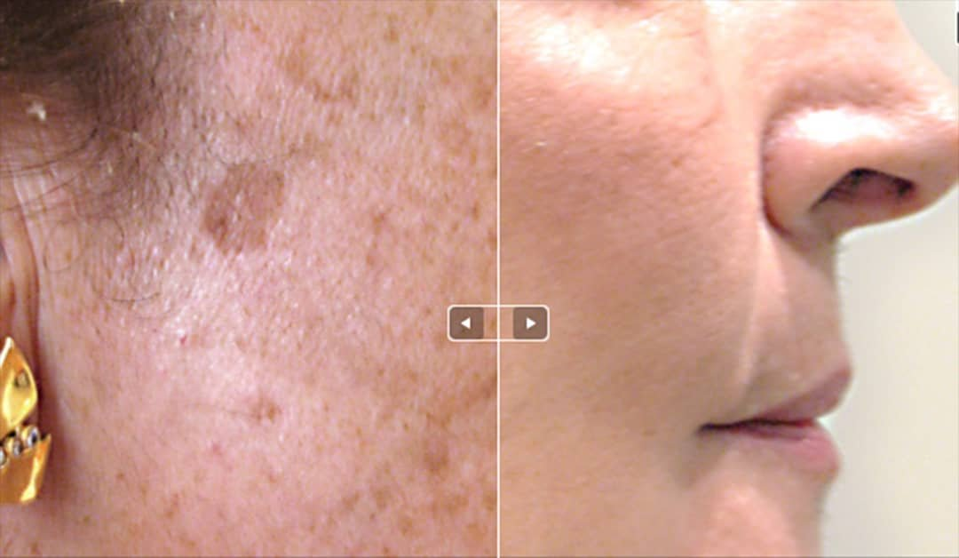 LASER AGE SPOT REMOVAL IN BRIGHTON