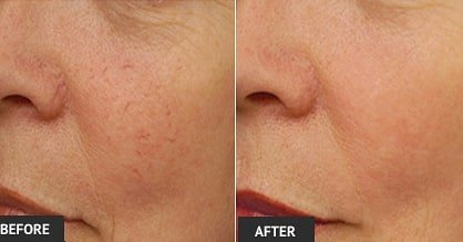 LASER SKIN REJUVINATION IN BRIGHTON