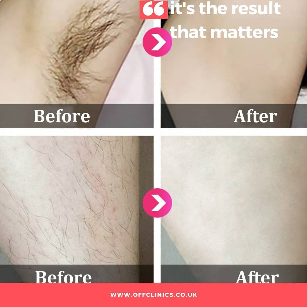 LASER HAIR REMOVAL IN HOVE