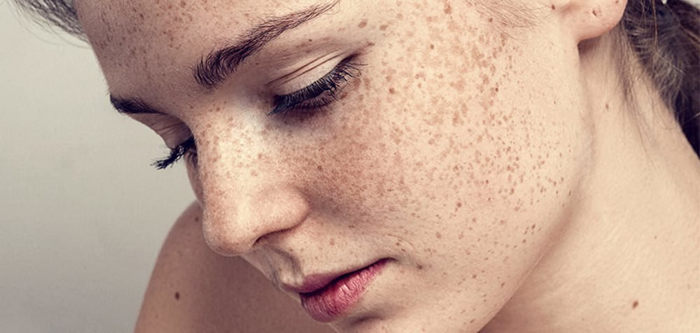 freckle-removal-treatments-laser-skin-resurfacing