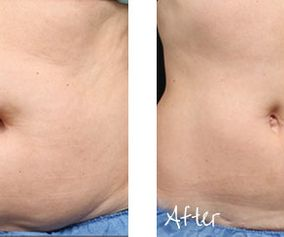 img_area_body_contouring_coolsculpting
