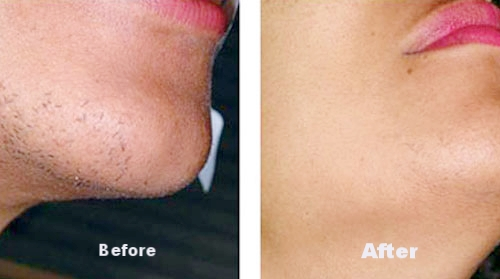 Results Driven Skin And Laser Clinic In Brighton Laser